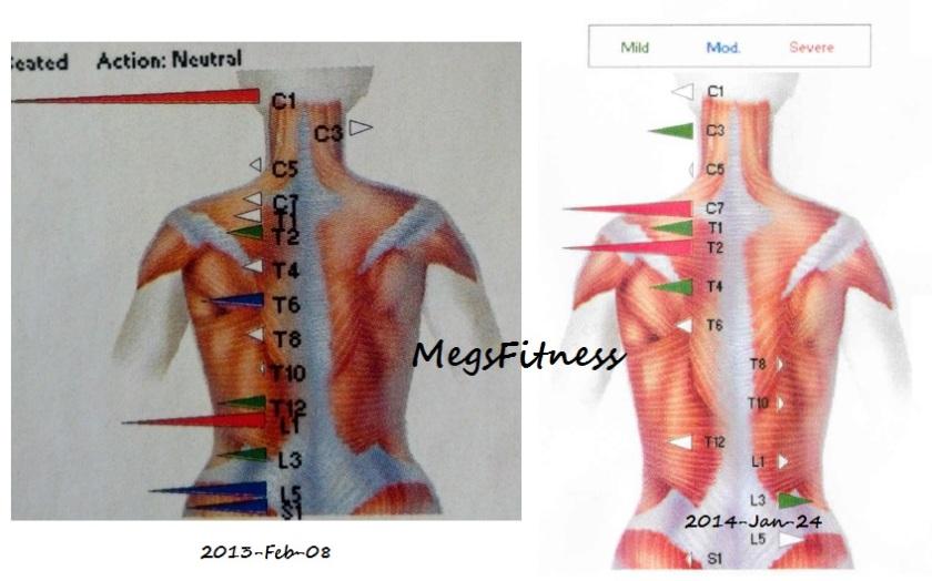 Chiropractor EMG Asymmetry